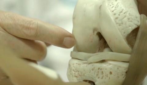 퇴행성관절염, 자가성체줄기세포기술로 일본서 치료한다.