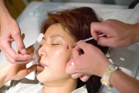 피부재생을 위해 일본 니시하라 병원에서 줄기세포 치료 중인 모습