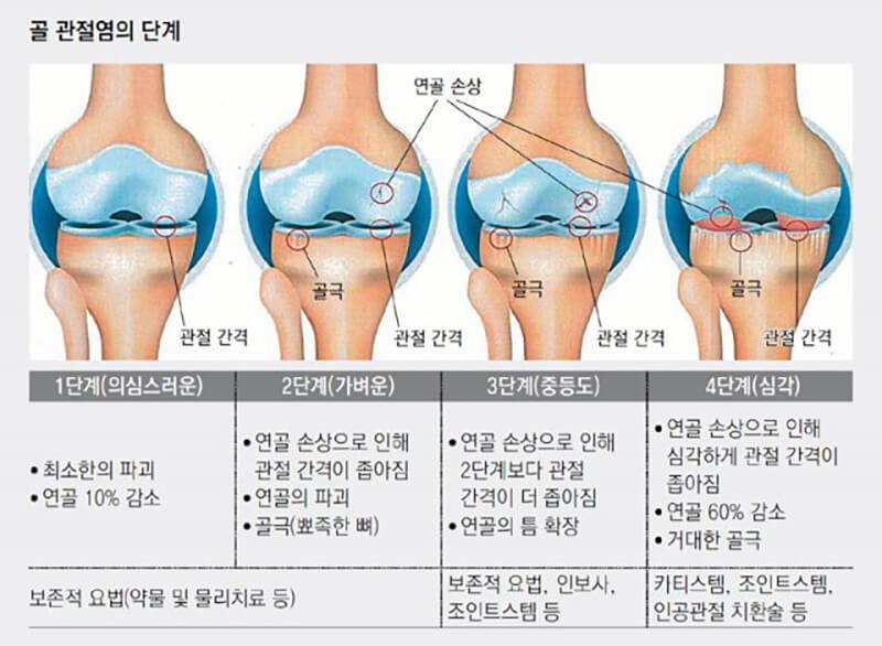 골 관절염의 단계